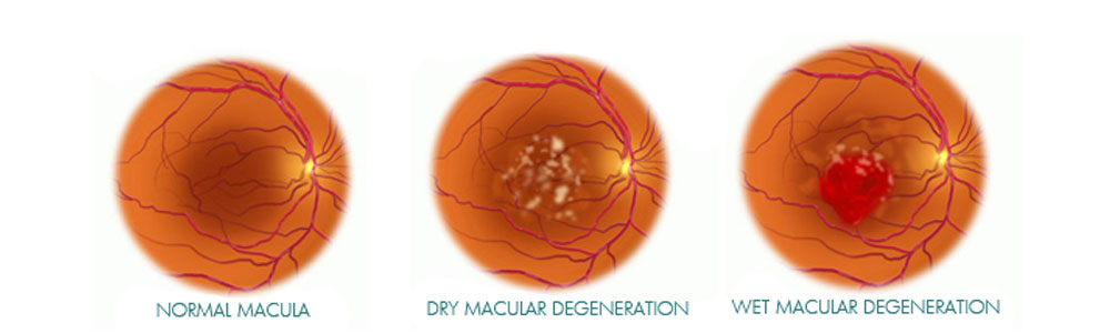 an introduction and overview of macular degeneration Dr witherspoon: my objectives for today will be to give you some background information on age-related macular degeneration or amd, tell you how amd affects the eye, and provide you with the new clinical research that's ongoing to treat this blindness disorder just for a brief overview of macular.